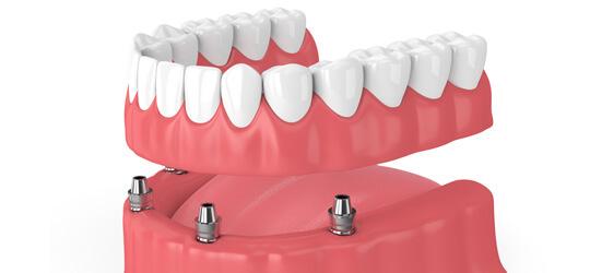 総入れ歯より優れたインプラント