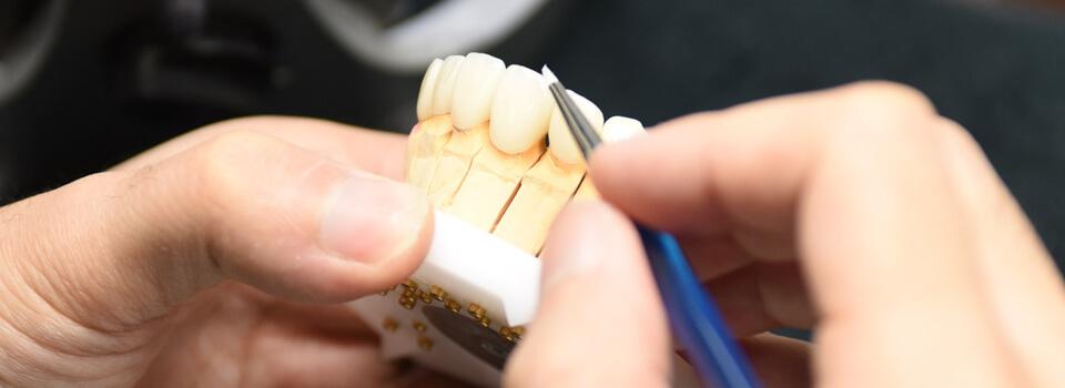 院内歯科技工所で色も形もこだわれる